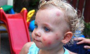 Chikungunya in babies
